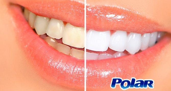 6 Consejos para mantener tus dientes blancos - Polar Ecuador