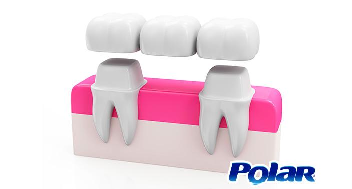 ¿Qué son los puentes dentales? | Polar Ecuador
